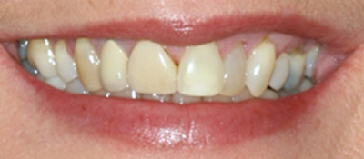 All Dental work by Dr. Thomas M. Green and Haupt Dental Lab.